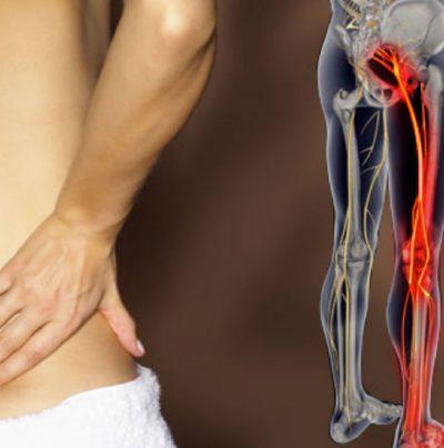 Cura de nervio ciatico Naucalpan