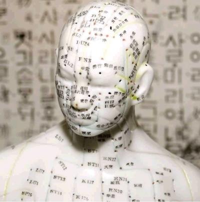 tratamiento de paralisis facial con electroacupuntura